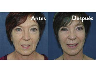 Rejuvenecimiento facial-553465