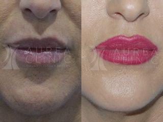 Antes y después Aumento de labios con Ácido Hialurónico