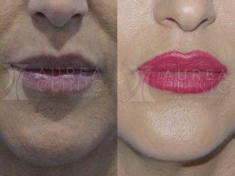 Rellenos faciales-626434