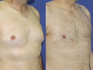 Ginecomastia | Antes y Después