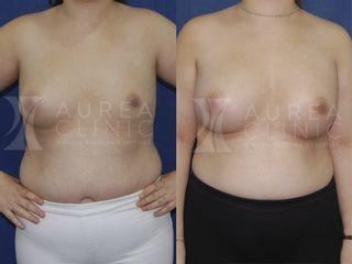 Aumento de pecho con asimetría mamaria | Antes y después