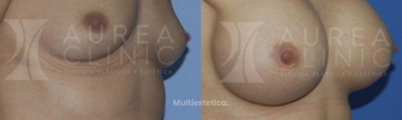 Aumento de pecho simple con prótesis | Antes y después