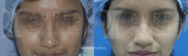 Bichectomía (reducción de mejillas) | Antes y después