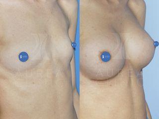 Aumento de pecho con prótesis anatómicas