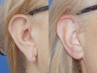 Antes y después Lobuloplastia