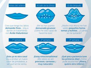 ¿Qué piensan las pacientes antes y después de recibir un relleno de labios con Ácido Hialurónico?
