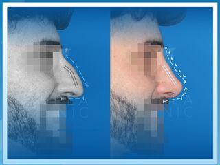 Antes y después de Rinoplastia Ultrasónica
