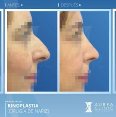 Antes y después Rinoplastia - Dra. Ana Martinez Padilla