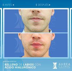 Antes y después Aumento de labios - Dra. Ana Martinez Padilla