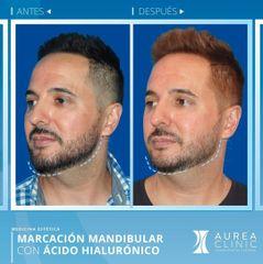 Antes y después Ácido hialurónico - Dra. Ana Martinez Padilla