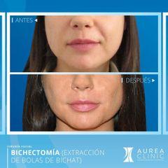 Antes y después Bichectomía - Dra. Ana Martinez Padilla