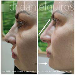 Rinomodelación - Dr Daniel Quirós