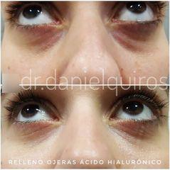 Eliminación de ojeras - Dr Daniel Quirós