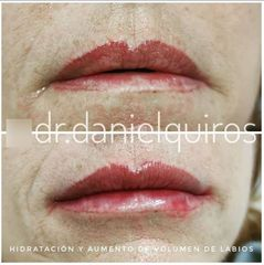Aumento de labios - Dr Daniel Quirós