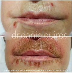 Eliminación de arrugas con Plexr - Dr Daniel Quirós