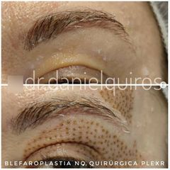 Blefaroplastia sin cirugía - Dr Daniel Quirós