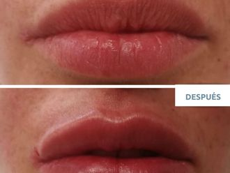 Aumento labios-694137