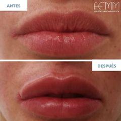 Aumento de labios - Clínica FEMM