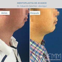Mentoplastia - Clínica FEMM
