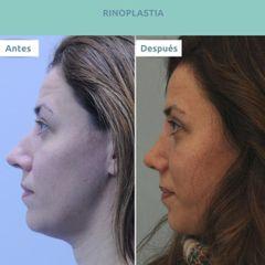 Rinoplastia - Clínica FEMM