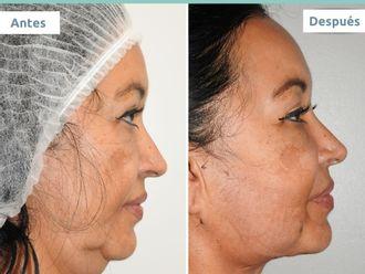 Rejuvenecimiento facial-701571