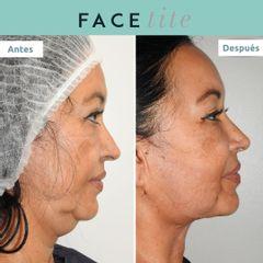 Rejuvenecimiento facial - Clínica FEMM