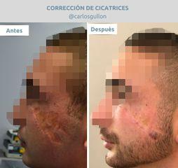 CORRECCION DE CICATRICES DRGULLON.jpg