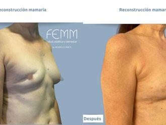 Reconstrucción mamaria - 793560