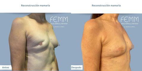 Reconstrucción mamaria - Clínica FEMM