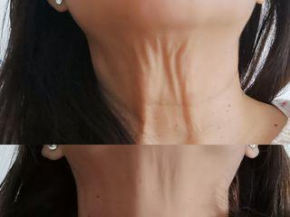 Antes y después Tratamiento de cuello