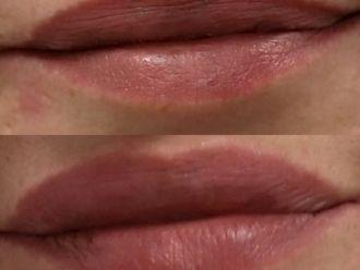 Aumento labios - 640474