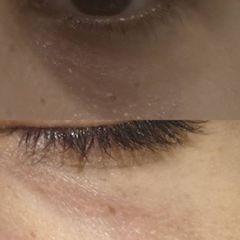 Eliminación de ojeras - Dra. Teresa Pajuelo