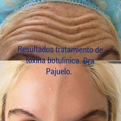 Bótox - Dra. Teresa Pajuelo