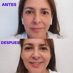 Peeling - Dra. Teresa Pajuelo