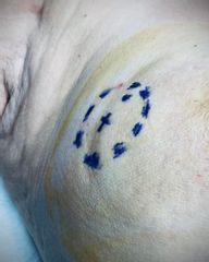 Abordaje mínimamente invasivo del cáncer de mama - Dr.Rubèn Baltà