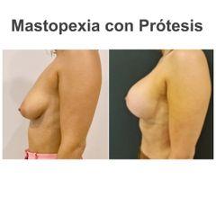 Mastopexia - Elena García Vilariño