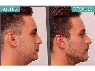 Antes y después Liposucción de papada