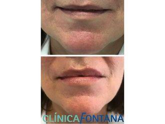 Aumento labios-684729