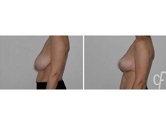 Reducción senos-684731