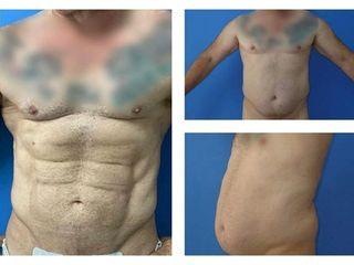 Antes y después Marcación Abdominal