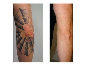 Eliminación de tatuajes-701753