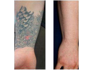 Eliminación de tatuajes - Clínica Fontana