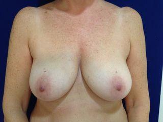 Prótesis mamaria preoperatorio frente