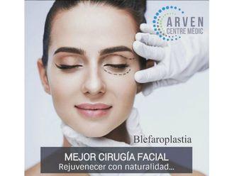 Blefaroplastia - 630966