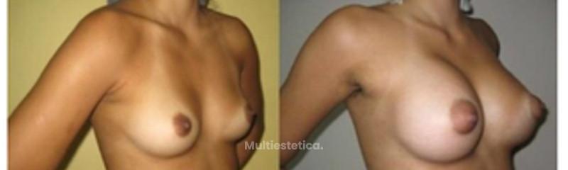 aumento de senos7