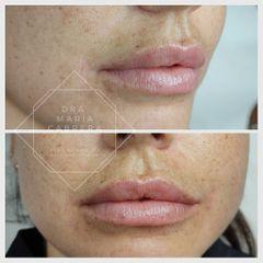 Aumento de labios - Dra. María Teresa Cabrera Lozano