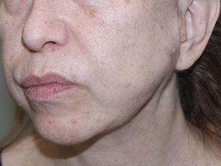 Definición óvalo facial