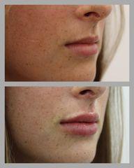 Aumento de labios - Eiviestetic Grupo Policlinica