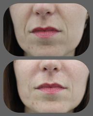 Rellenos faciales - Eiviestetic Grupo Policlinica