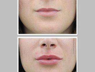 Aumento labios-788775